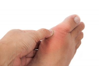 prevent gout attacks