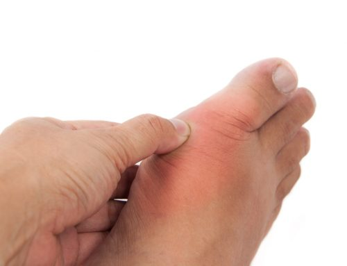 5 Ways to Prevent Gout Attacks