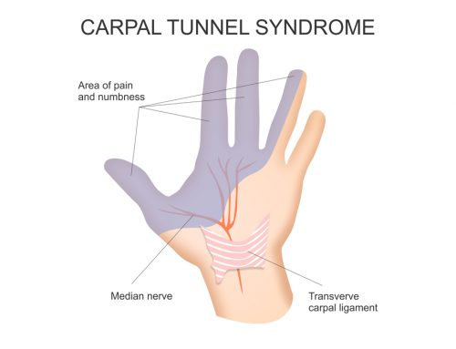 Carpal Tunnel Syndrome FAQs