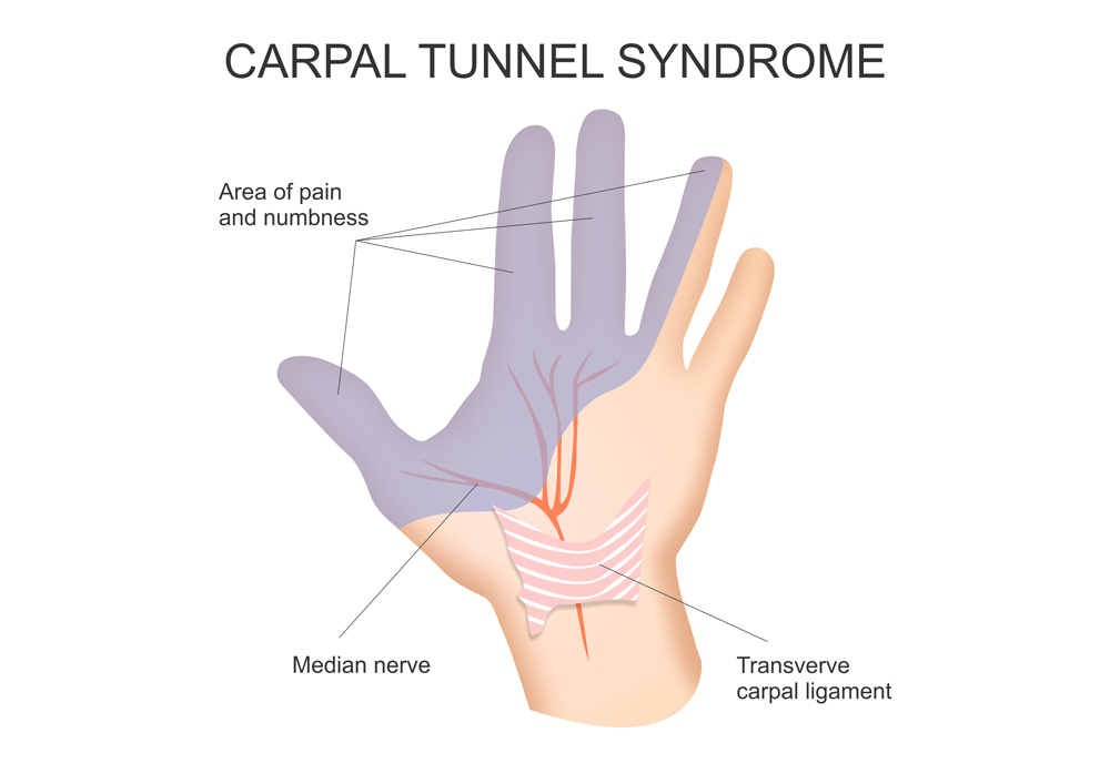 Picture demonstrating nerves in hand and carpal tunnel syndrome