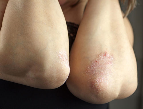 Eczema Causes And Flare-Ups: How To Get Rid Of Them